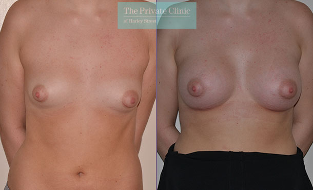 tubular breast correction surgery before after photos london front Adrian Richards 043AR
