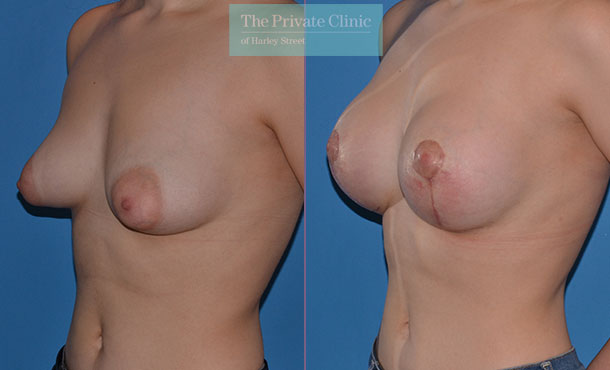 tubular breast correction surgery before after photos results angle Adrian Richards 045AR
