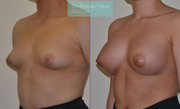 tubular breast correction surgery uk before after results angle Adrian Richards 042AR