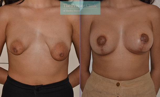 tubular breast correction treatment before after photos front Adrian Richards 044AR