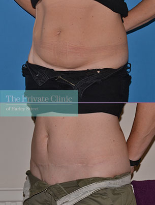 tummy tuck abdominoplasty before after photos london results angle 056AR