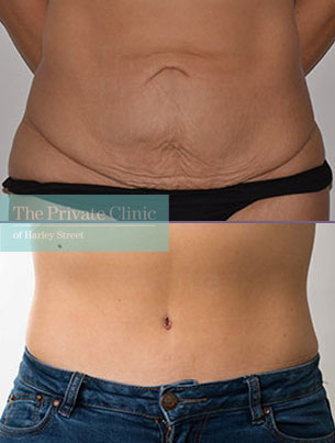 tummy tuck abdominoplasty surgery before after photos results front 057AR