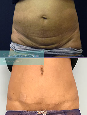 tummy tuck before after photos strech marks results uk front miles berry 011MB