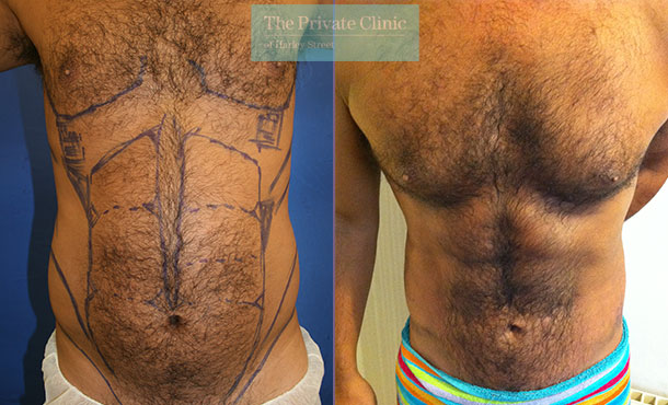 vaser hi def liposuction london 6pack lipo before after photos results front 013TPC