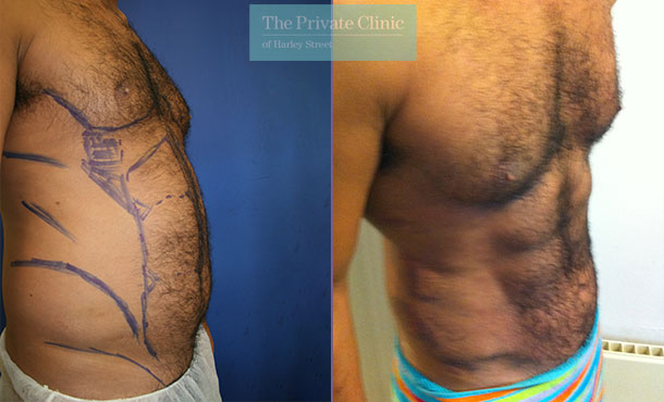 vaser hi def liposuction london six pack lipo before after photos results abdomen side 013TPC