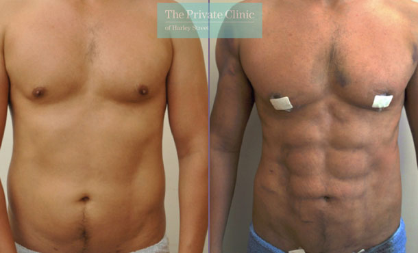 vaser hi def liposuction male abdomen lipo before after photos 008TPC