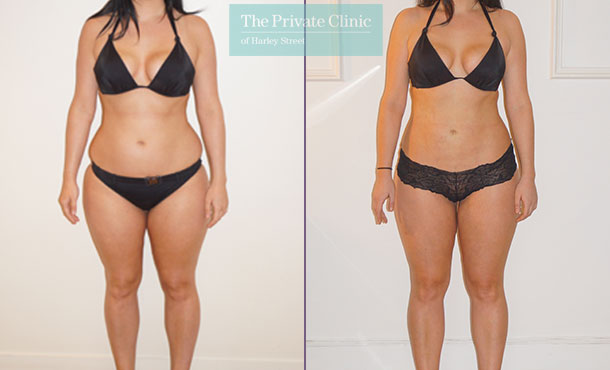 vaser liposuction flanks thighs hips lipo before after results photos the private clinic front 003TPC