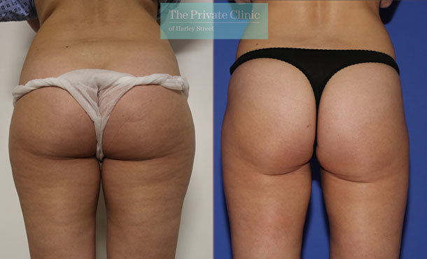 vaser liposuction hips thighs lipo before after photos uk results the private clinic 007TPC