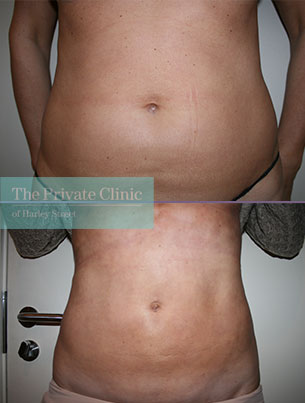 vaser liposuction lipo belly before after photos london results dr dennis wolf 006DW