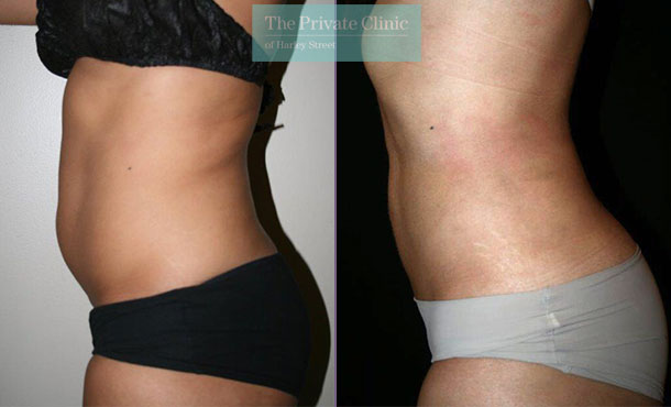 vaser liposuction stomach lipo before after results photos uk dr dennis wolf 001DW