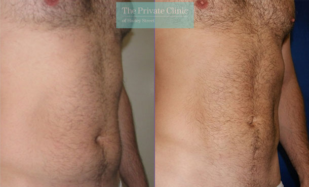 vaser mid def liposuction lipo before after results photos abdomen 011TPC