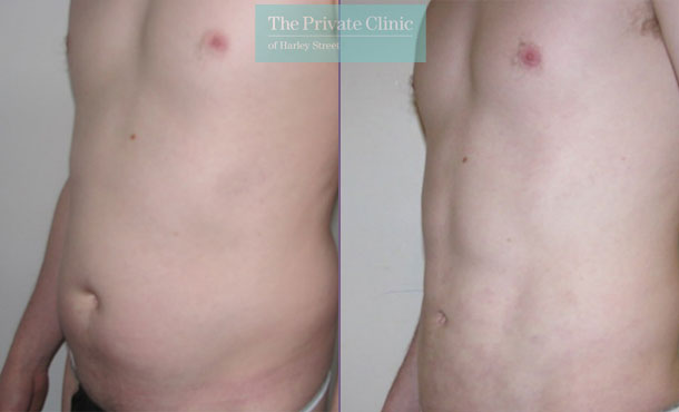 vaser mid def liposuction lipo before after results photos abdomen 012TPC