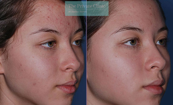 Acne Obagi Clenziderm london before after photo results 071TPC