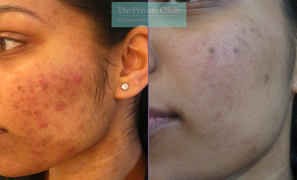Acne nlite before after results 025TPC