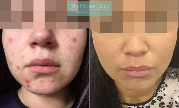 Acne nlite laser treatment near me before after results 021TPC
