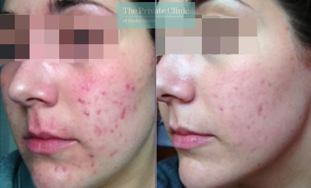 Acne photo before after nlite results 020TPC