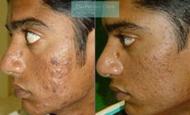 Acne scars male before after photo uk results 033TPC