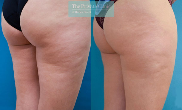 Cellulite treatment butts mesotherapy body ballancer before after photo results 093TPC