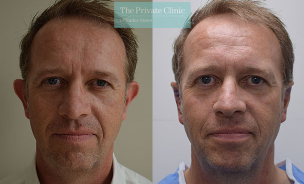 Earfold implant before after photos uk results front Brian Musgrove 001BM