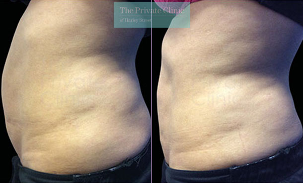 Emsculpt build muscle abdomen tummy before after photos side results 102TPC