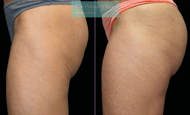 Emsculpt build muscle buttock lift before after photo results 101TPC