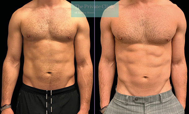 Emsculpt build muscle male abdomen tummy before after photo results 100TPC