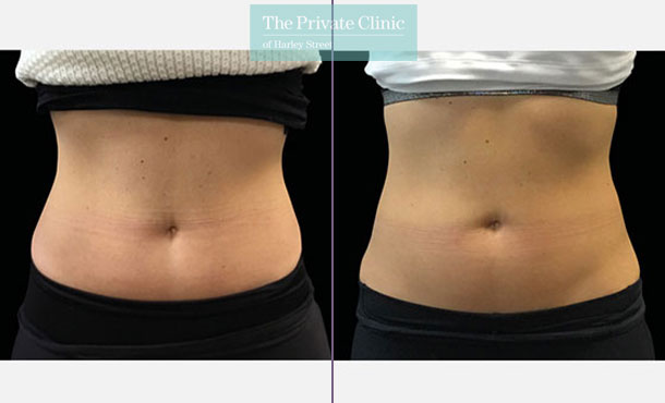Emsculpt build muscle stomach tummy before after photo results 098TPC