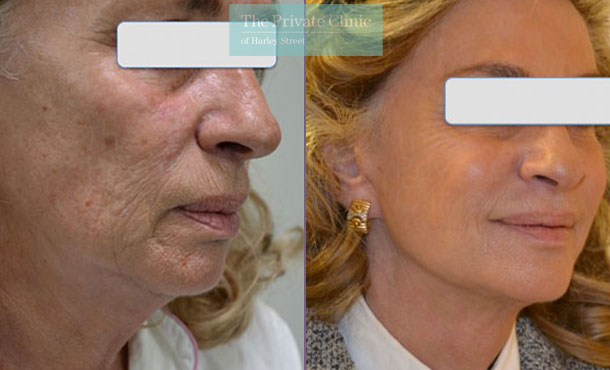 Facelift surgery london before after photos results 094TPC