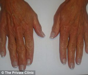 Hands Before - The Private Clinic