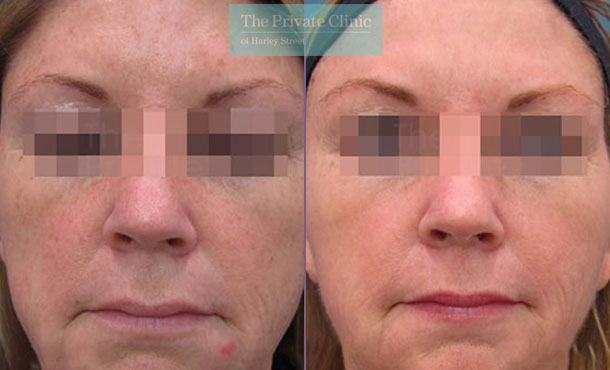 IPL photofacial face before after photo results 029TPC
