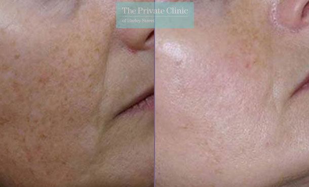 IPL photorejuvenation face before after photo results 030TPC