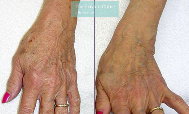 IPL photorejuvenation hands before after photos results 026TPC