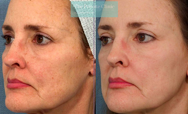 IPL treatment face before after photos uk results 027TPC