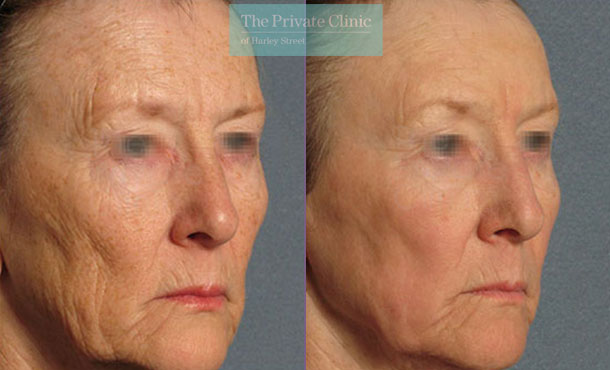 Laser resurfacing facial lines wrinles women london before after photo results 045TPC