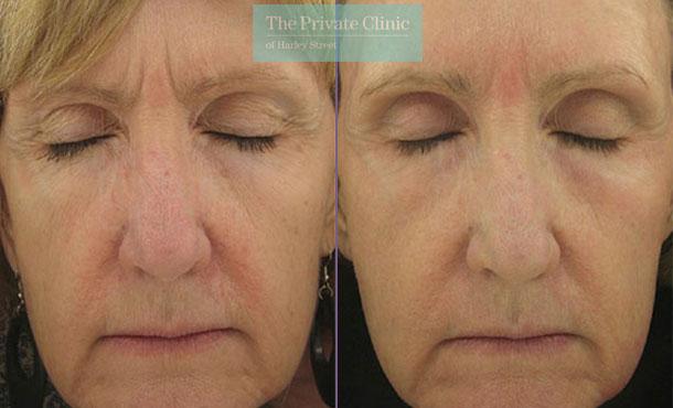 Laser resurfacing facial rejuvenation uk before after photo results 049TPC