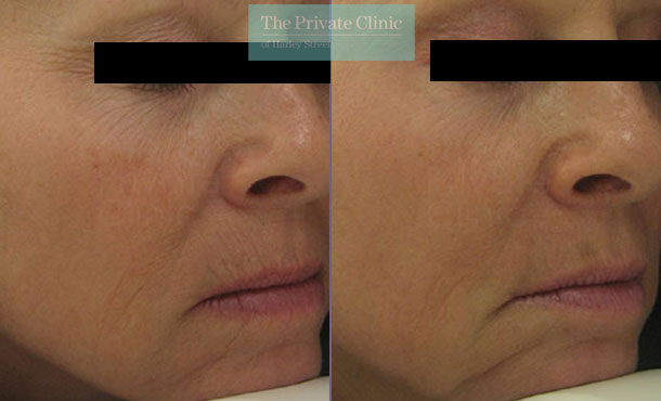 Laser resurfacing nose lips wrinkles before after photos results 043TPC