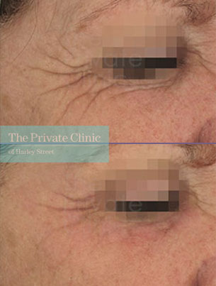 Laser resurfacing pearl crows feet before after photo results 060TPC