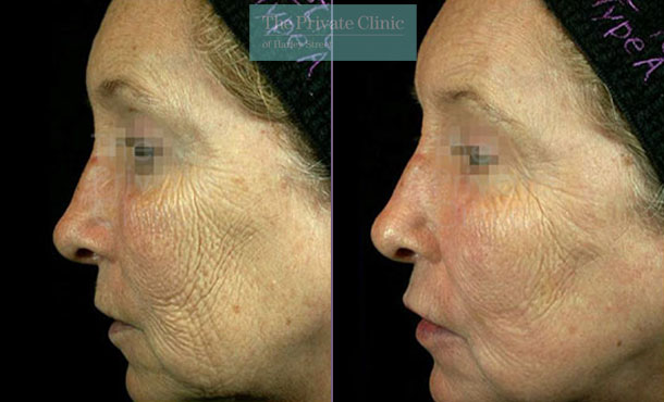 Laser resurfacing pearl crows feet lines before after photo results left side 051TPC