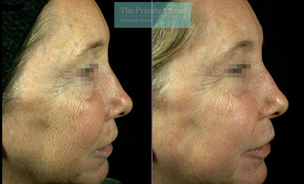 Laser resurfacing pearl crows feet wrinkles before after results right side 051TPC