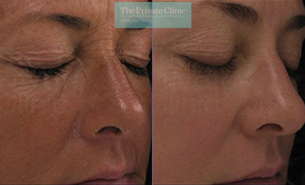 Laser resurfacing pearl eye wrinkles before after photo results 046TPC