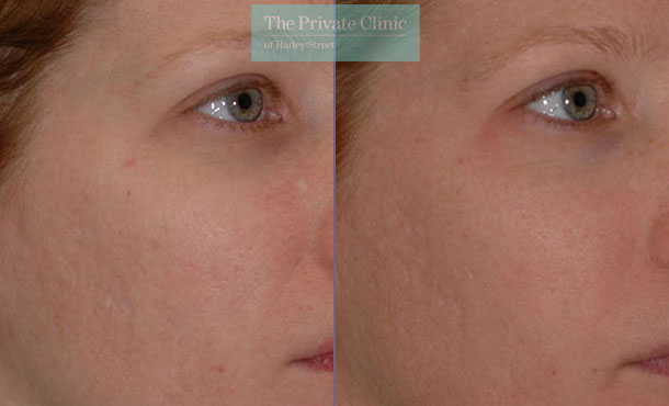 Laser resurfacing pearl face rejuvenation before after photo results 066TPC