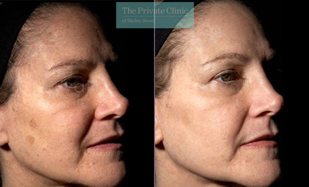Laser resurfacing pearl face spots before after photo uk results 038TPC