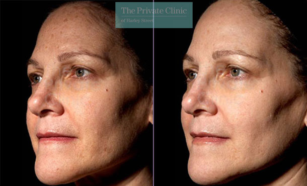 Laser resurfacing pearl face spots rejuvenation results before after photo 039TPC