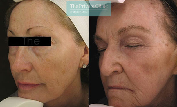 Laser resurfacing pearl face uk before after photo results 040TPC