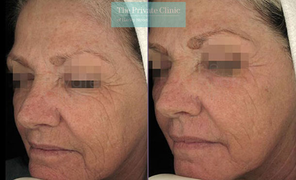 Laser resurfacing pearl face wrinkles lines before after photo results 059TPC