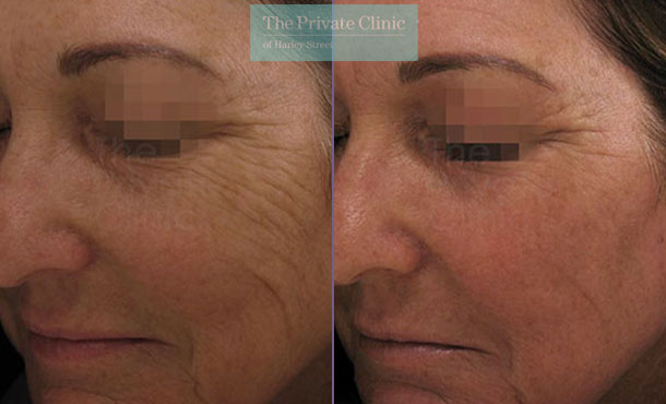Laser resurfacing pearl facial rejuvenation london before after photo results 061TPC