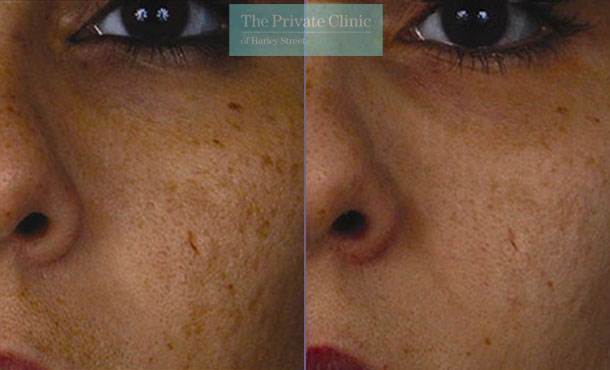 Laser resurfacing pearl facial scarring before after photo results 044TPC