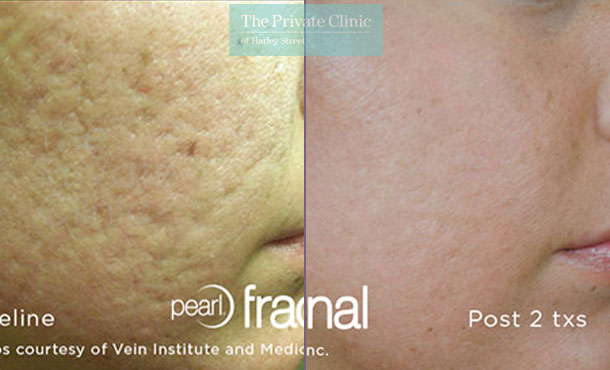 Laser resurfacing pearl facial scars before after photo results 065TPC