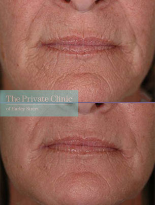 Laser resurfacing pearl front before after results 067TPC