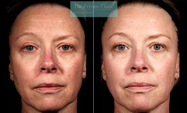 Laser resurfacing pearl london before after photo results 037TPC